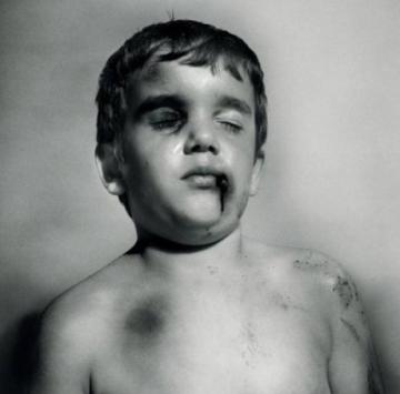 Child-abuse-boy