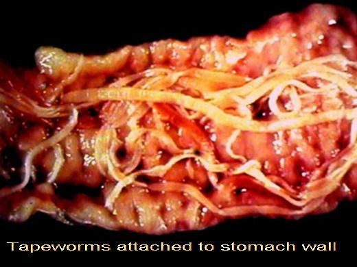taenia-solium-or-pork-tapeworm
